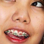 girl-with-braces-and-cell-phone