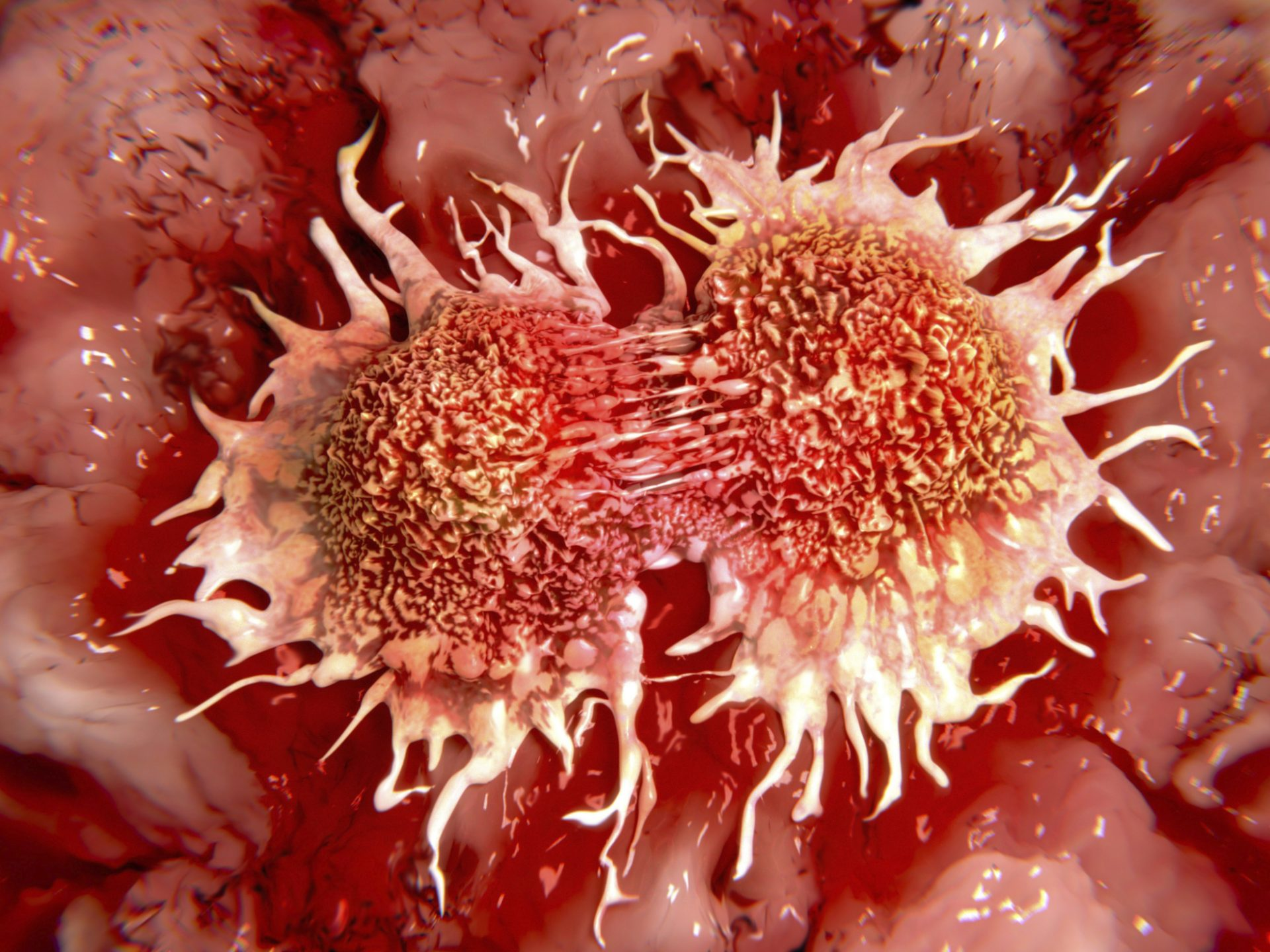 Tumor growth increases with high sugar intake ... - photo#4