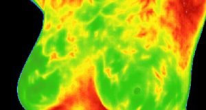 thermography-test
