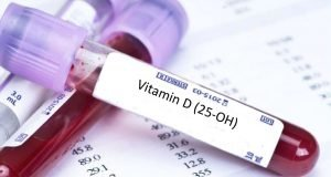 vitamin-d-blood-test