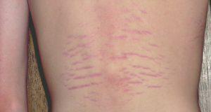 bartonella-disease