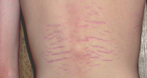 Bartonella Disease A Misunderstood Infection