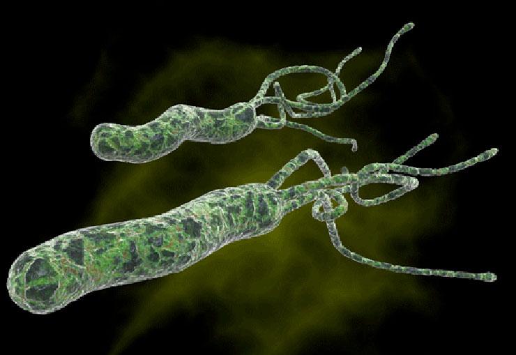 Can H Pylori Be Treated Naturally