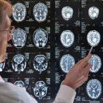melatonin-dementia-stroke