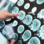 nicotinamide-riboside-dementia-treatment