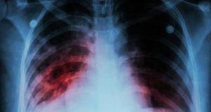 vitamin-c-tuberculosis