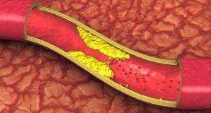 vitamin-k-artery-health