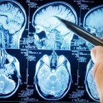 carnosine-brain-health