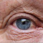macular-degeneration