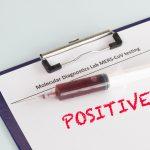 antibody-testing