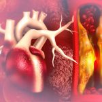 fight-atherosclerosis-naturally