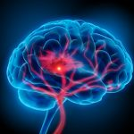 over-the-counter-medication-increases-risk-of-stroke