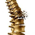 bone-fracture-risk-reduced