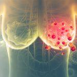 false-breast-cancer-diagnosis
